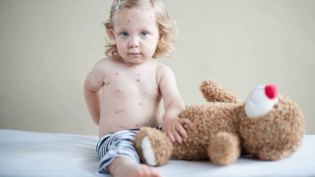 Varicella nei bambini - Paginemamma